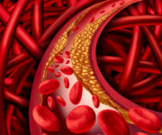Peripheral Vascular Disease | Orange County PRP Injections